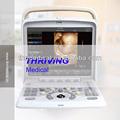 Thr-cd005q Doppler couleur 4D Machine à ultrasons
