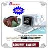 Digital Veterinary Ultrasound Scanner(BW510V),vet, equine pregnancy, equine tendon, cattle, swine, bovine,sheep,pet imaging