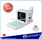 2013 hot sale baby sex check ultrasound scanner--DW360