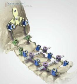 Massaggio a una curvatura di una spina dorsale cervicale