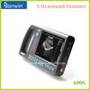 Digital PalmSmart Portable Ultrasound Machine