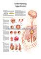 3d medizinische diagramm- Verständnis Bluthochdruck