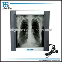 medical x ray equipment/x ray film illuminator/back lit
