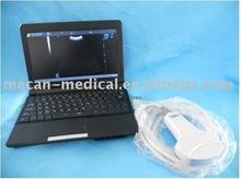 Laptop Full Digital Ultrasound Scanner, Mini type, MCB-LP01