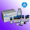 Triglyceride TG clinical chemistry reagent biochemistry diagnostic kit