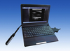Digital Portable Veterinary Ultrasound Scanner Animal Diagnostic System Equipment