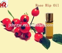 rose hips oil for lady