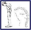 Ankylosing Spondylitis Herbal Medicine