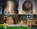 O cabelo novo sunburst nourshing líquido 6 em 1 melhor venda quente perda de cabelo produto de tratamento / sunburst crescimento do cabelo produtos 100 conjuntos