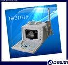 DW3101A ultrasound scan machine&wide application b mode ultrasound portable