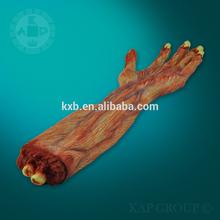 Plastic human broken arm model/anatomical human body part model for training A02-007