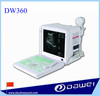 DW360 ultrasound scanners for sale &ultrasound body scanner