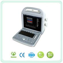 My-A027 Full Digital Laptop Doppler Color Portable Ultrasound Scanner Made In Guangzhou Maya