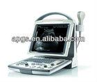 CE FDA Certificated Portable B/W Ultrasound machine DP-20