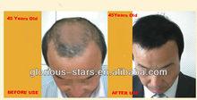 E249 best hair loss treatment 2013