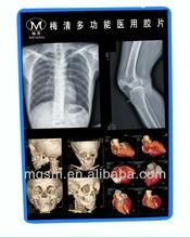 Meiqing azul base médica film\x- raios film\dry filme sobre laser/inkjet printers\oem/agfa kodak fuji substituto