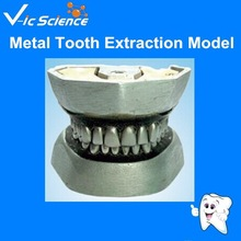 High Quality Metal Tooth Extraction Model