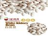 High Quality White kidney bean 2014 new crop