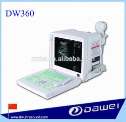 ultrasound imaging system&ultrasound device DW360
