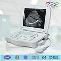Thr-lt002 digital de ultrasonido de diagnóstico