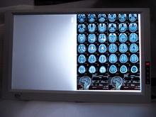 brightness adjustable CE FCC 2 bank medical x ray film viewer