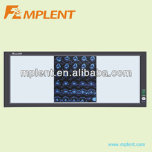 three screen LED medical film viewer with film sensor