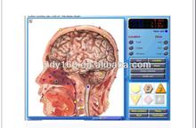 Best price Quantum analyzer health body analyzer magnetic resonance 3 d nls analyzer