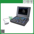Ysb0121 portátil dispositivo de ultra-som diagnóstico