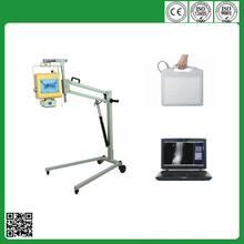 4.0 kw flat panel detector medical mobile portable digital x ray