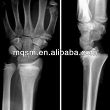 Mei Qing radiological films x ray films for hospital