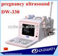B veterinarios ultrasonido instrumento& de ultrasonido para los caballos vacas dw330