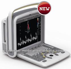 Cardiac Portable Color Doppler Ultrasound Machine Price Medical Sonar 2D 3D 4D Echocardiography Ecografo USD Echo Machine