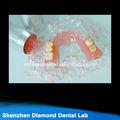 caliente dental ipn prótesis parcial flexible suministros flexible de la dentadura