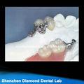 caliente dentales de precisión de aleación de apego de los suministros dentales