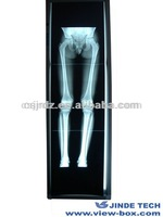 LED Orthopedic x-ray film viewing box,x-ray film viewing light box,x-ray film viewer box and film viewing boxes