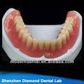 dental fornecedor para prótese dentária total acrílico com ivovclar dentes