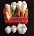 laboratorio dental de demostración del implante los modelos