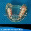 Caliente valplast dentadura parcial dentadura suministros