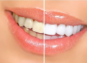 Biggest promotion 10pcs HIGH STRENGTH BLEACHING TEETH WHITENING TOOTH WHITENER GEL PEN STRONG WHITE