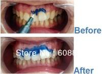 freeshipping,3ml,gum barrier,dentam dam,gingival barrier for teeth whitening ,dentist ,dental clinic,cold light,with tips