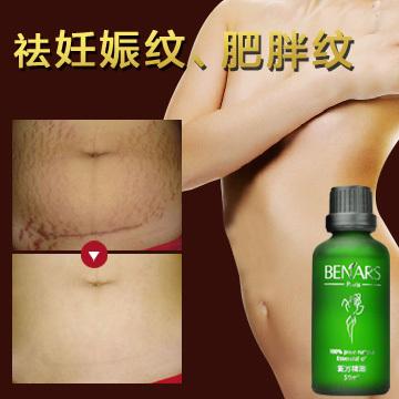 Mächtig, um Dehnungsstreifen mutterschaft ätherisches Öl Hautpflege creme für Dehnungsstreifen Entferner Fettleibigkeit postpartale reparatur