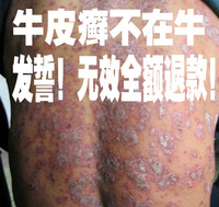 Rapid effects of pure Chinese medicine to cure psoriasis tinea never relapse invalid refund