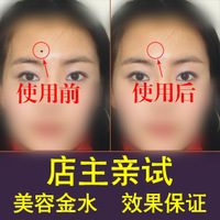 Genuine beauty Goldwater went incognito mole removal cream syrup elderly black spots freckles mole remove moles 29 yuan shipping