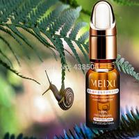 AFY 2014  snail extract Liquid cream  whitening moisturizing anti-aging acne Face Care Cream Serum