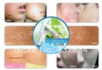 Nuobisong Brand Remove Scar Cream Remove Acne Spots Remove Striae Gravidarum Pigmentation Corrector Anti-Aging Moisturizing 15ml