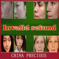 Hot sell Best Lightening Whitening Skin Bleach Bleaching Cream Remove Dark Skin Spots removal freckle aloe acne remove skin care