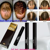 FEG hair growth solution -Herbal Hair Growth Liquid 5 ml hair loss treatments free shipping