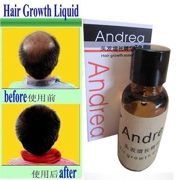Promotion! Andrea Hair Growth anti Hair Loss Liquid 20ml dense hair fast sunburst hair growth grow free shipping(China (Mainland))
