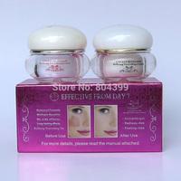 2014 New Arrival FEIQUE cherry blossoms refining nourishing facial cream anti freckle cream 20g+20g 12set/lot face care
