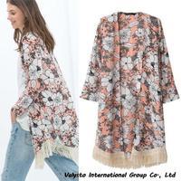 Free shipping 2014 Hot new fashion Women clothes denim windbreaker casual down jacket autumn dress down jacket hot sales